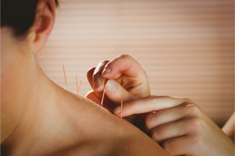 acupunctuur dry needling